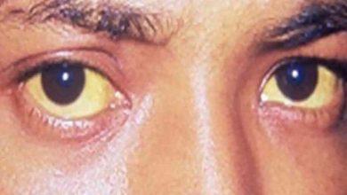 Photo of ما هو مرض ويلسون اعراض مضاعفات اسباب عوامل الخطر متى يمكن رؤية الطبيب